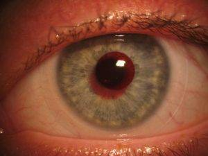 Eyesymmetry Vision Treatment For Color Blindness In Baltimore